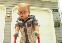 toddler-uses-crutches